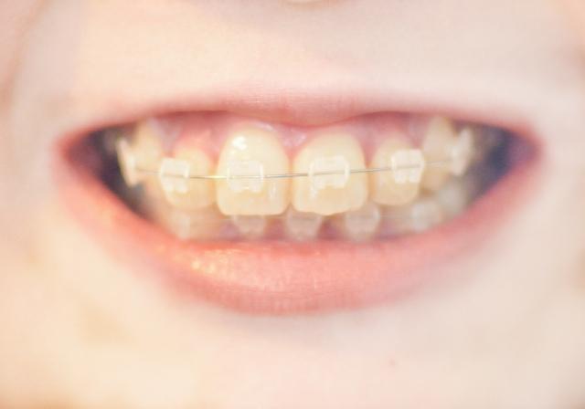 4月2日 歯列矯正の日